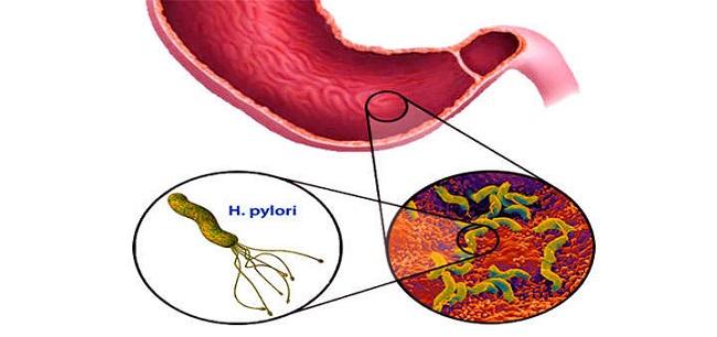 heliko-bakterija-simptomi-ishrana-i-lecenje