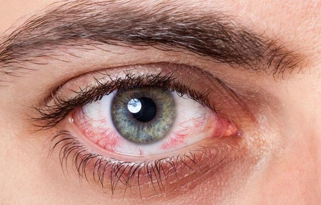 konjuktivitis-oka-kod-dece-i-odraslih-simptomi-uzrok-i-lecenje
