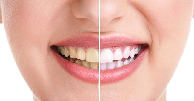izbeljivanje-zuba-sodom-bikarbono-kod-kuce-prirodnim-putem