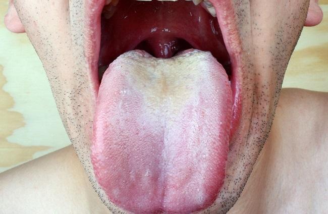 kandida-u-grlu-simptomi-i-lecenje