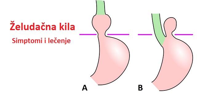 zeludacna-kila-simptomi-ishrana-i-lecenje-kile-na-zelucu