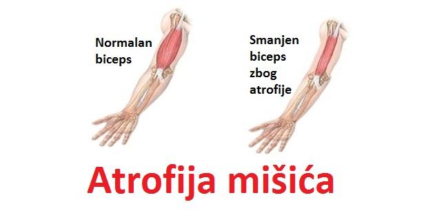 Atrofija mišića noge ili ruke kod dece i odraslih - simptomi, uzroci i lečenje