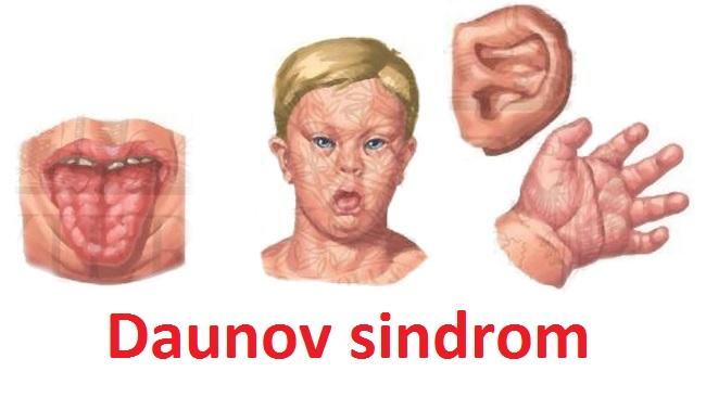 Daunov sindrom kod beba i dece – simptomi, uzroci i lečenje