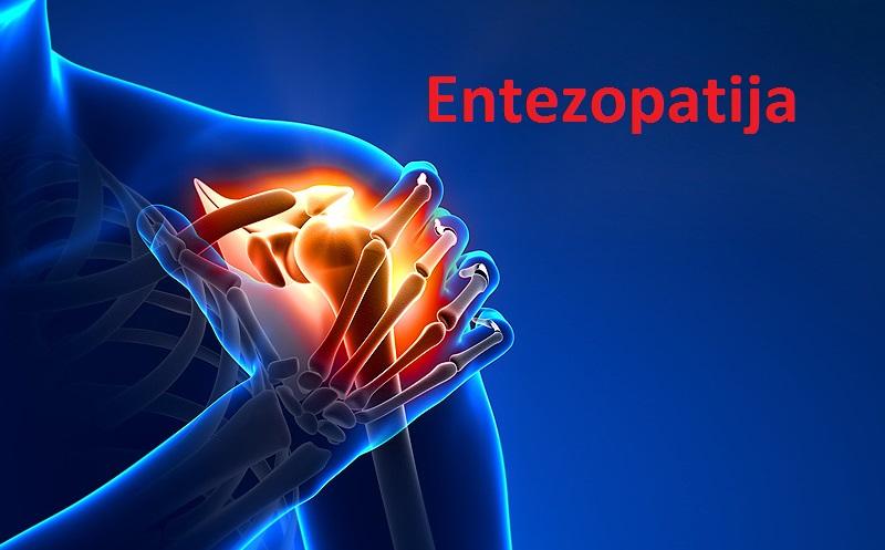 Entezopatija kolena, ramena ili ahilove pete - simptomi, uzrok i lečenje