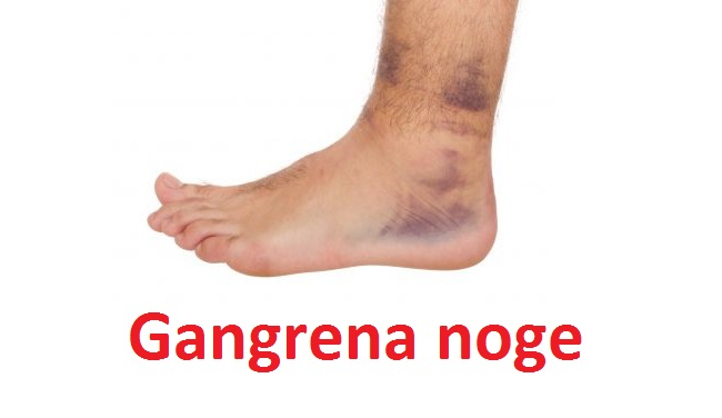 Gangrena noge, ruke i zuba - simptomi, uzroci i lečenje