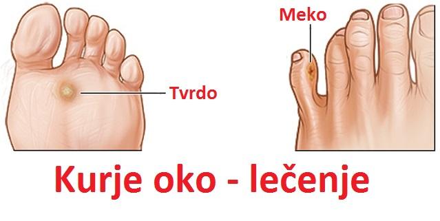 kurje-oko-na-stopalu-prstu-ruci-simptomi-uzrok-i-lecenje