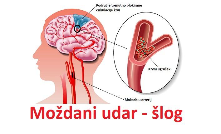 Moždani udar, šlog - simptomi, uzrok, prva pomoć, lečenje, oporavak i posledice