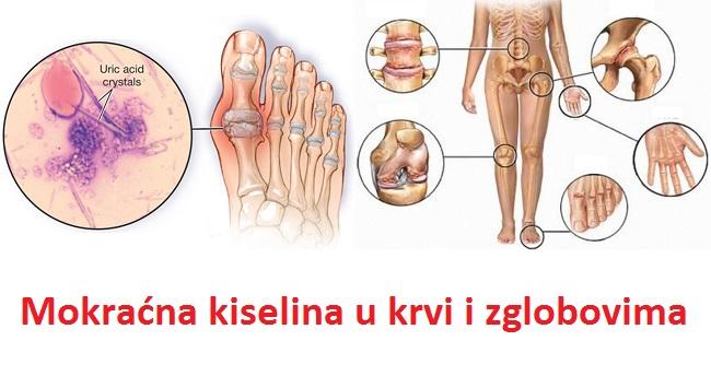 Mokraćna kiselina u krvi, urinu, zglobovima - simptomi i lečenje