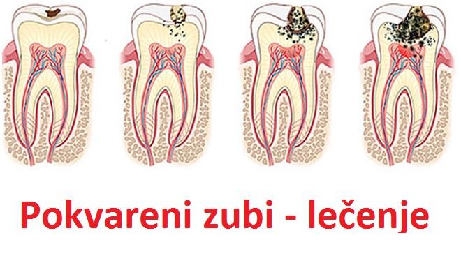 pokvareni-zubi-kod-dece-i-odraslih-karijes-posledice-lecenje-i-vadjenje-zuba
