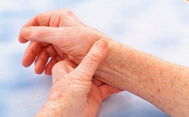 reumatska-groznica-kod-dece-i-odraslih-simptomi-uzroci-i-lecenje