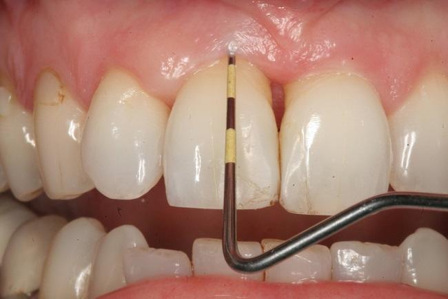 gangrena zuba simptomi i lecenje