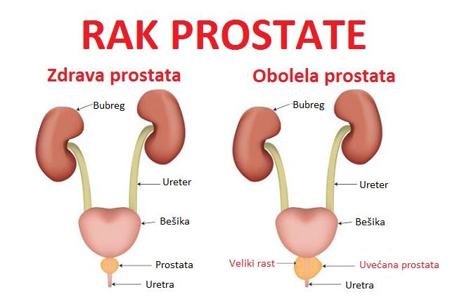 uvecana prostata bolovi